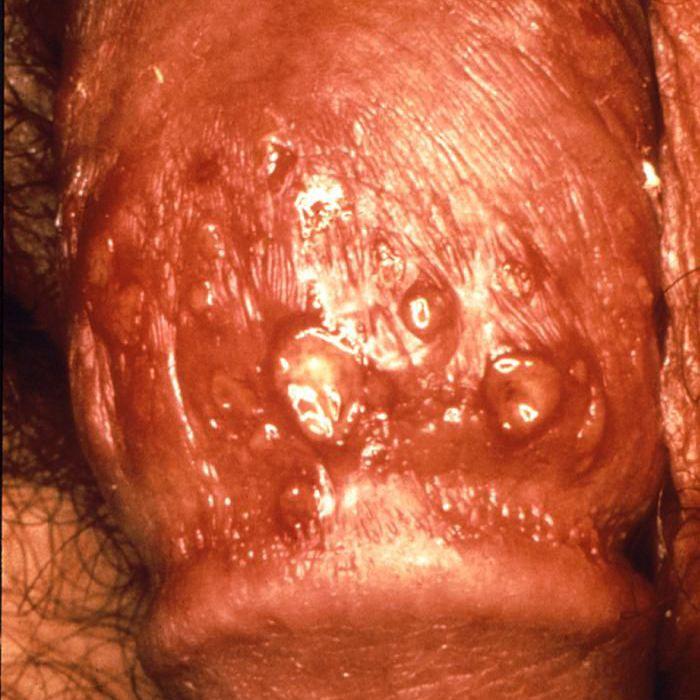Genital herpes on a penis