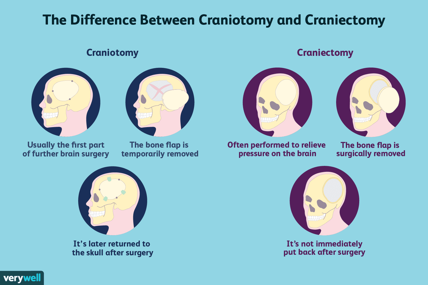 The Difference Between Craniotomy and Craniectomy