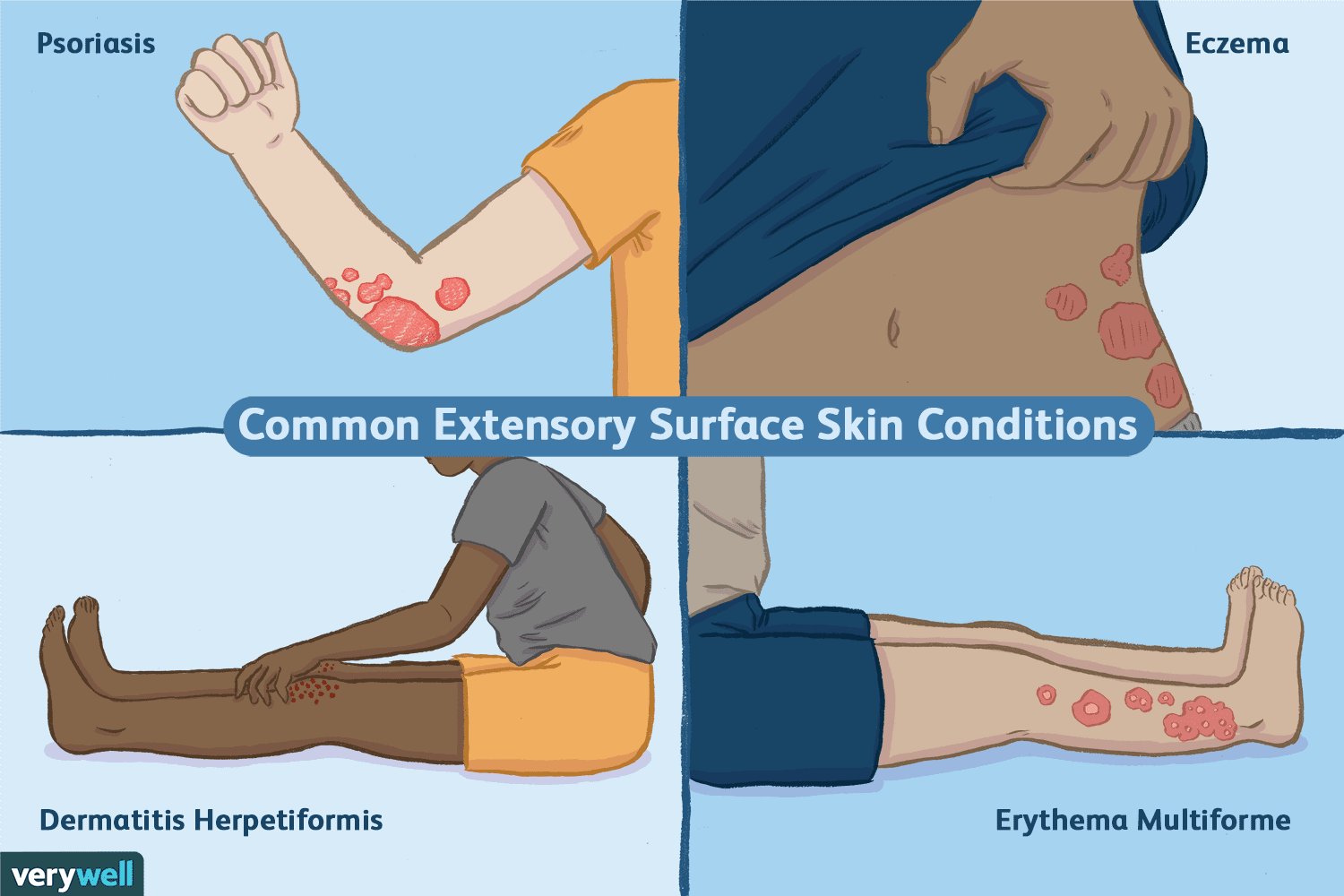 Common Extensor Surface Skin Conditions
