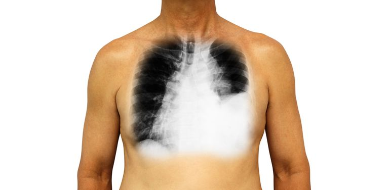 chylothorax on chest x-ray