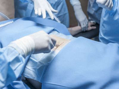 Surgical team operating patient