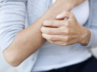 woman itching skin