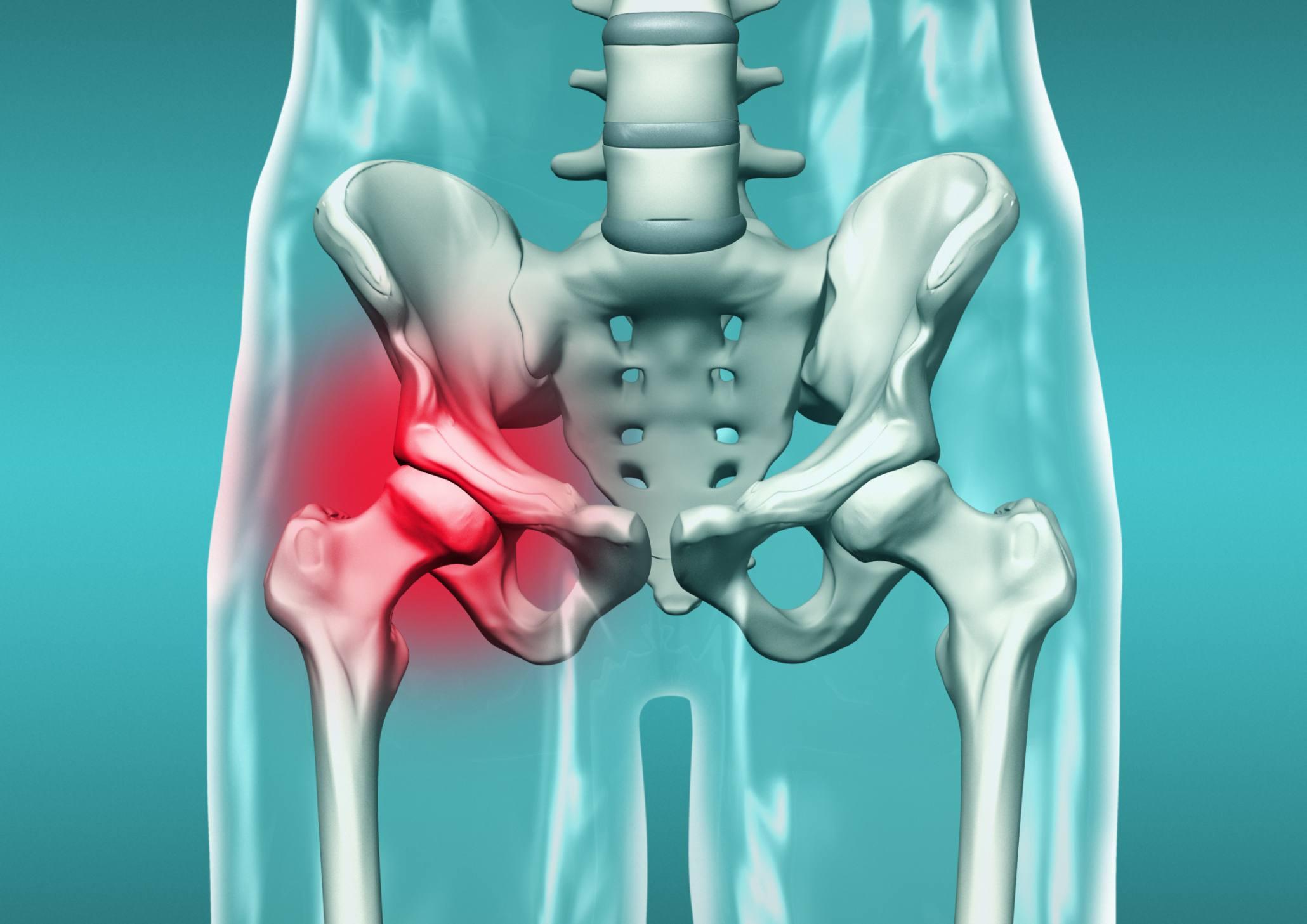 illustration of hip pain