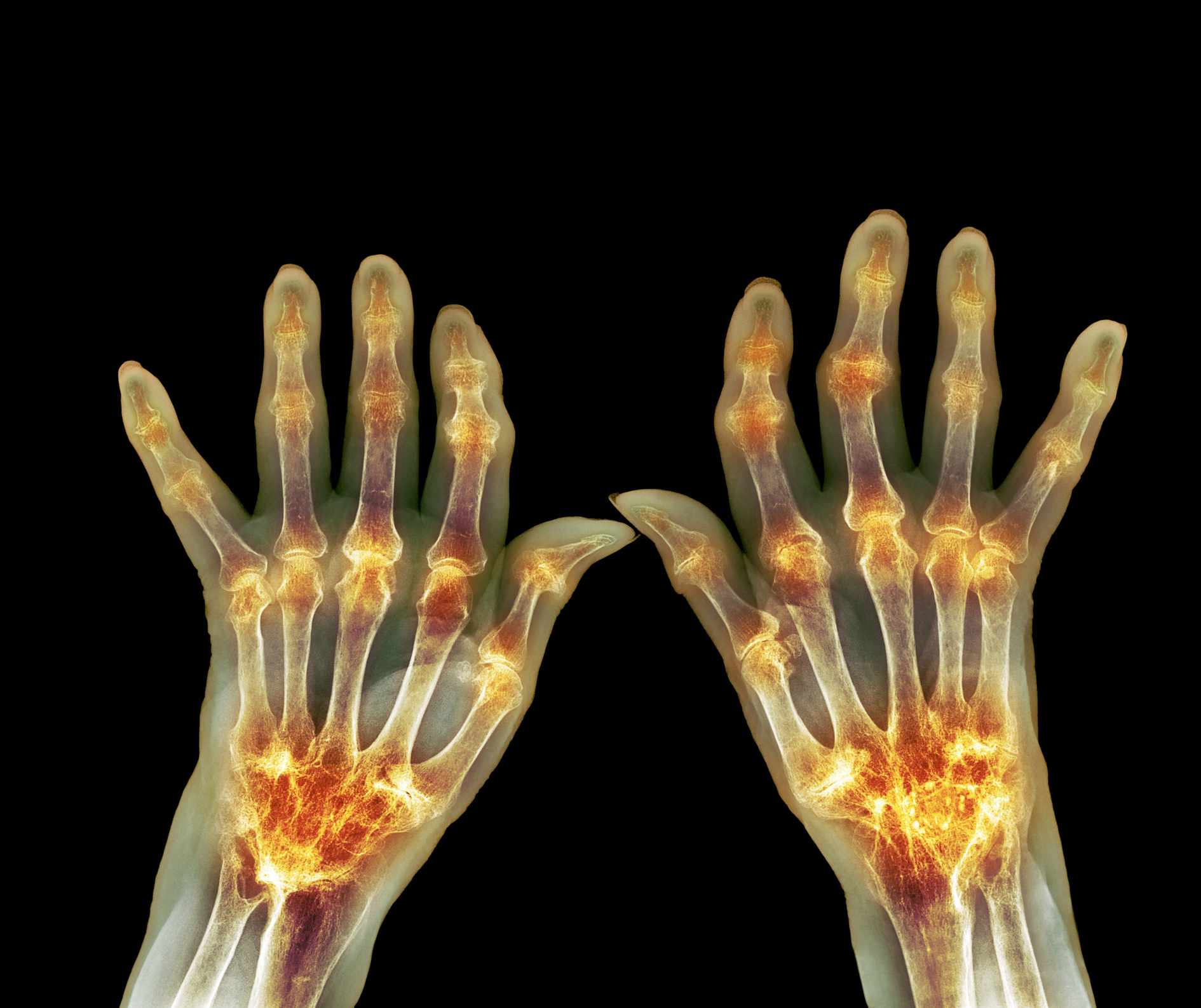Rheumatoid arthritis, X-ray of hands