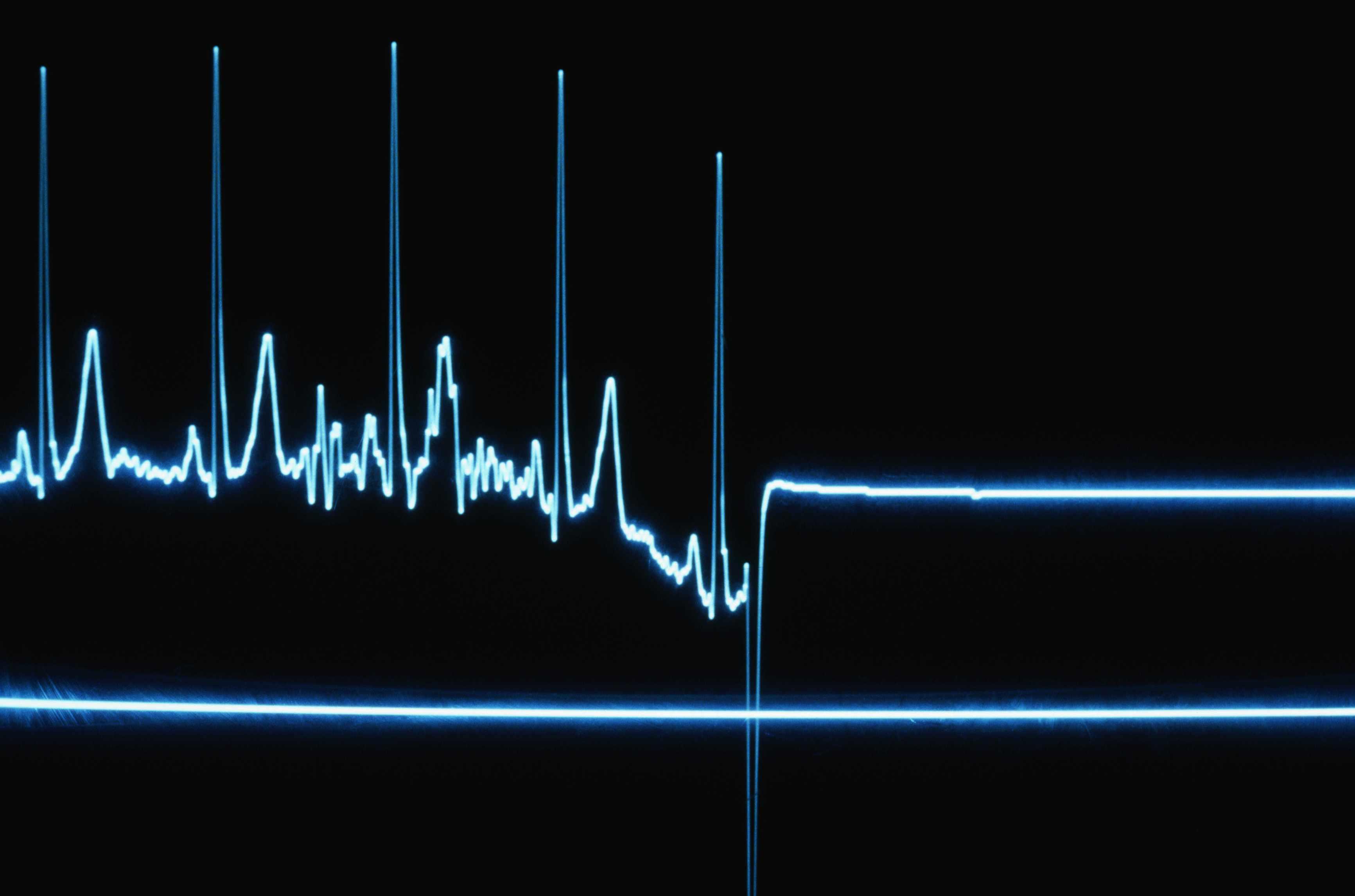Flatline on a Heart Monitor
