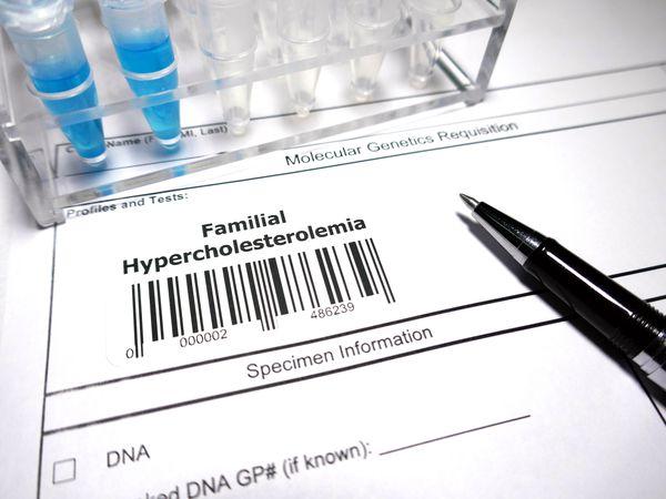 Hypercholesterolemia Test