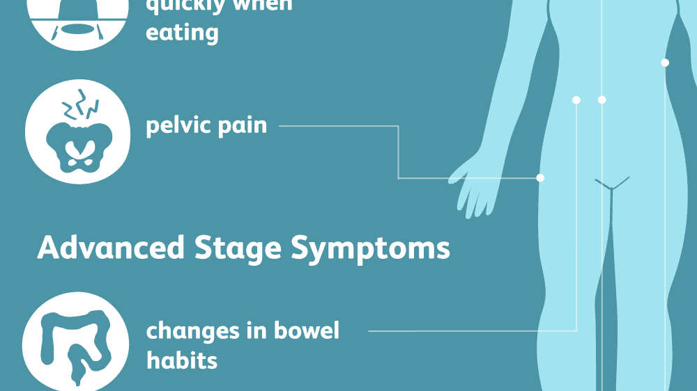 Ovarian Cancer Signs Symptoms And Complications