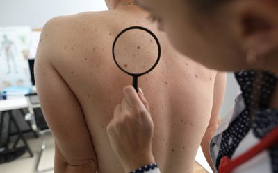 Doctor oncologist with magnifying glass in his hand examines pigmented nevi on patient's back in clinic - stock photo