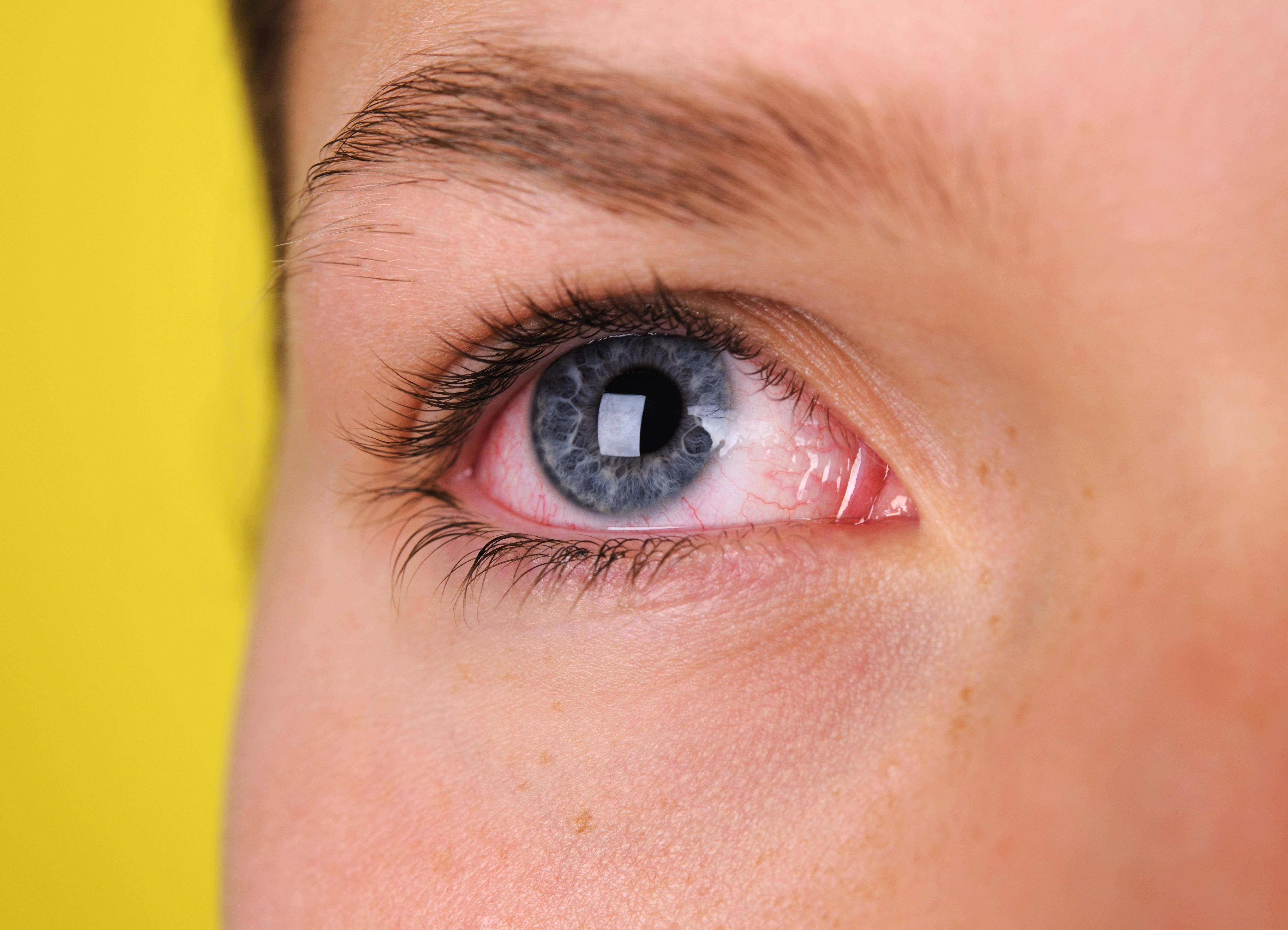 Pink Eye Conjunctivitis Symptoms And Complications