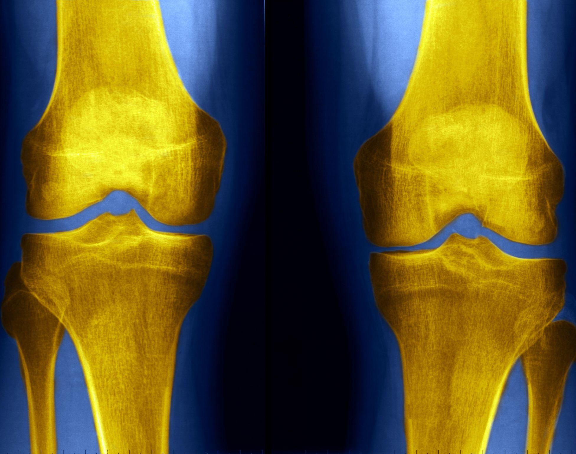 Knee X Rays And Detecting Abnormalities