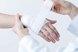Doctor treating a hand burn