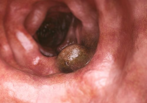 Illustration of colon cancer