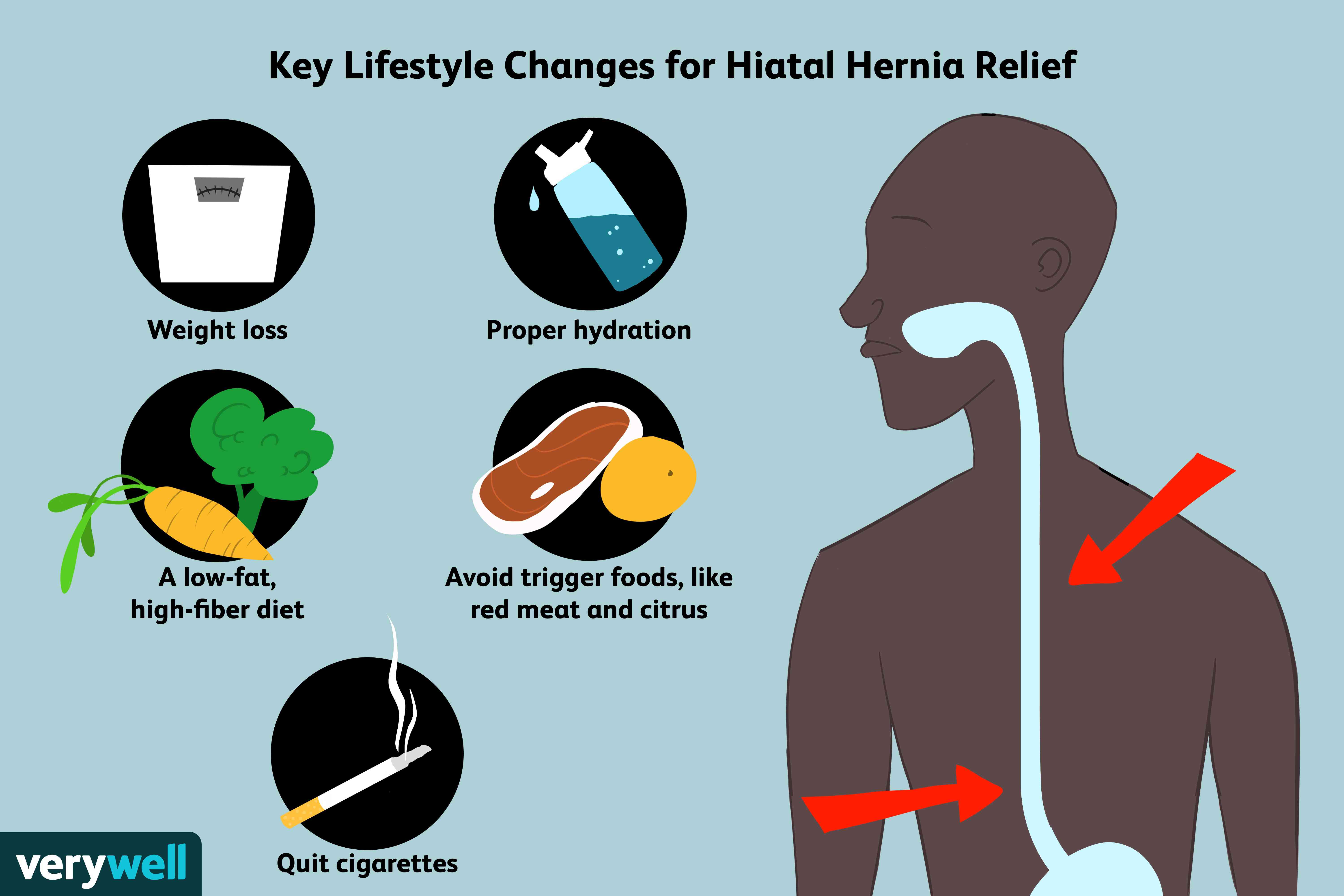 can you havenatures ownon hital hernia diet