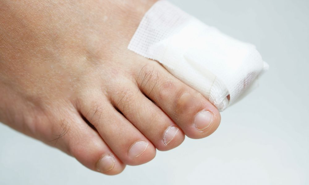 A person with a bandaged toe