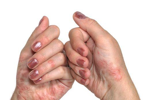Psoriasis Skin Pain