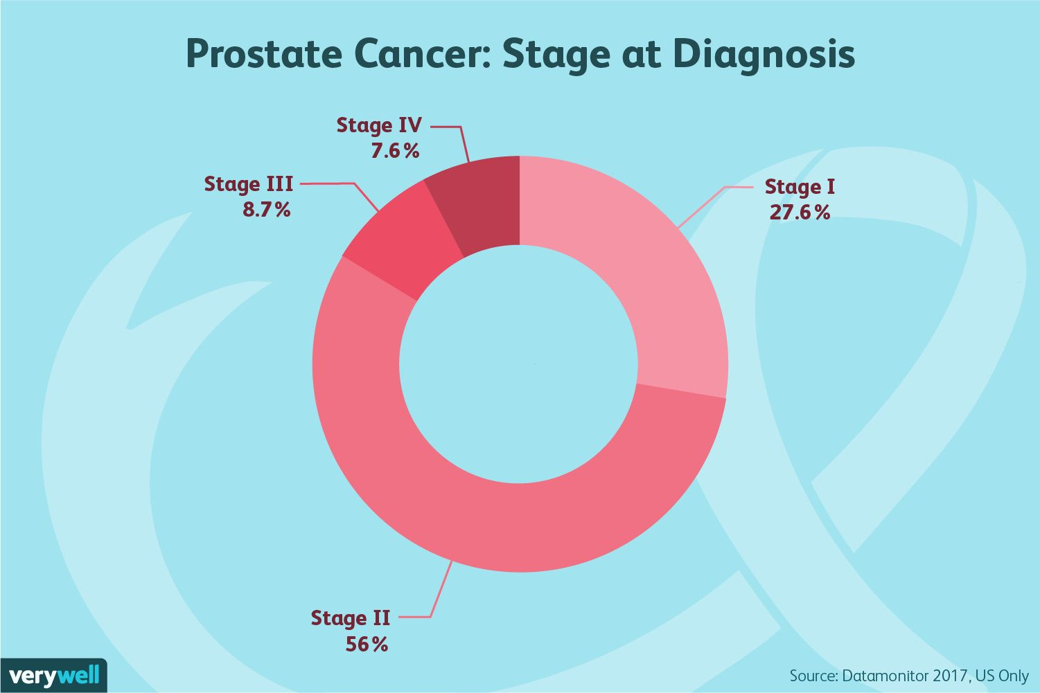 prostate cancer: stage at diagnosis