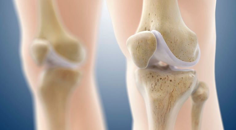 an illustration of knee cartilage