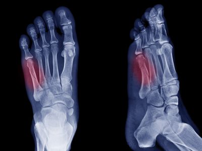 x-ray image of bone fracture at 5th Metatarsal left foot