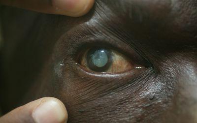 Using Eye Drops to Treat Cataracts