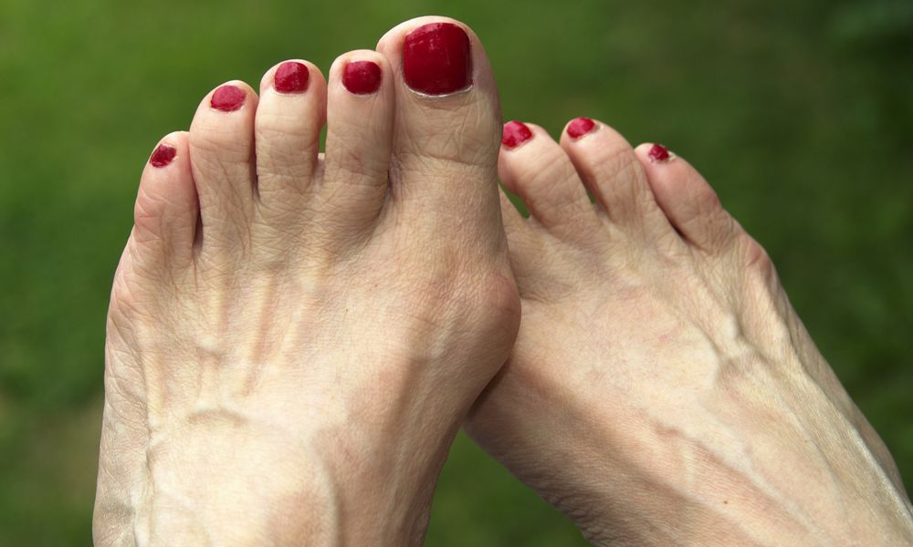 Bunion treatment range from bunion pads to bunion surgery