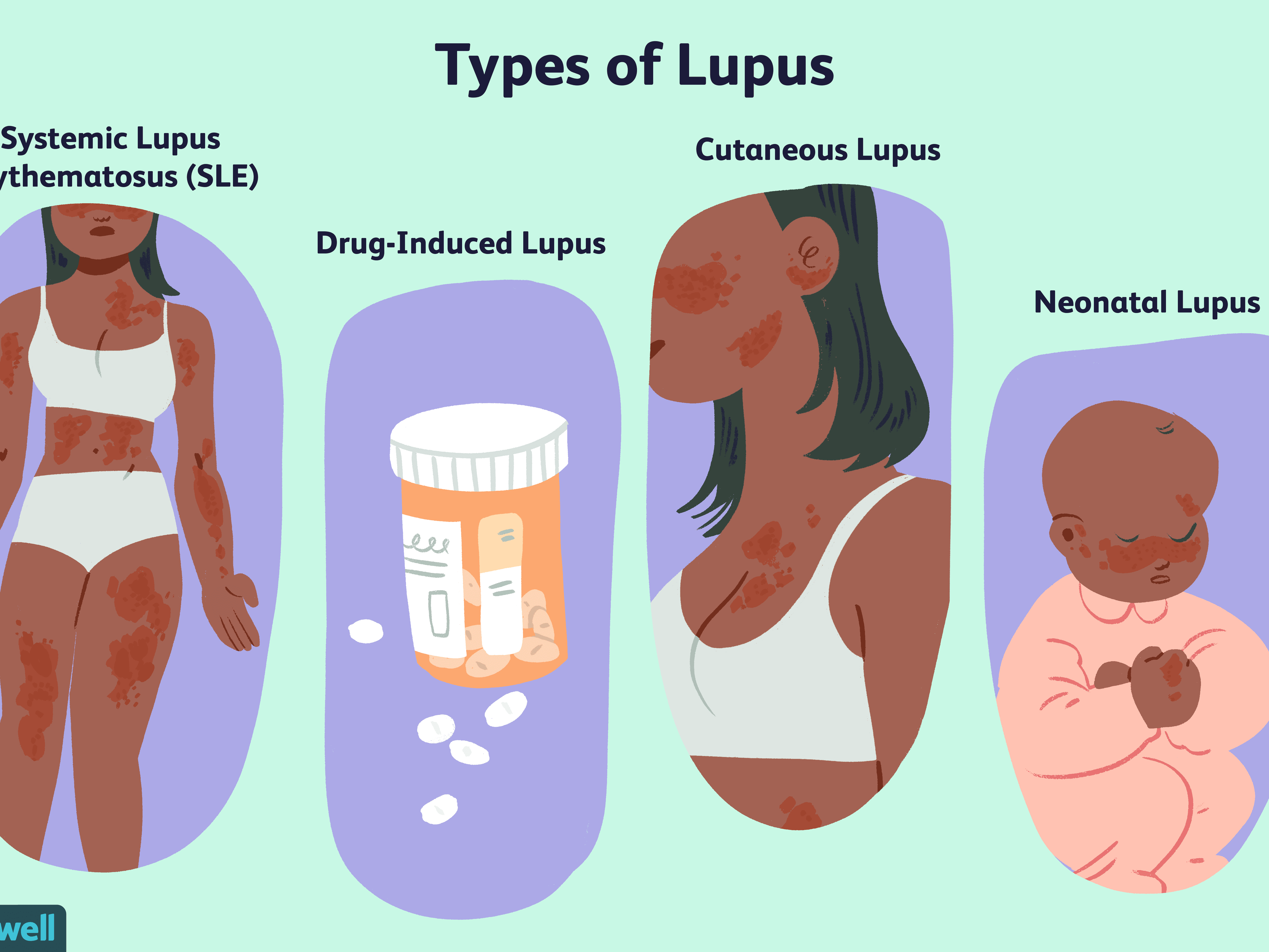 Is lupus what or Cognitive