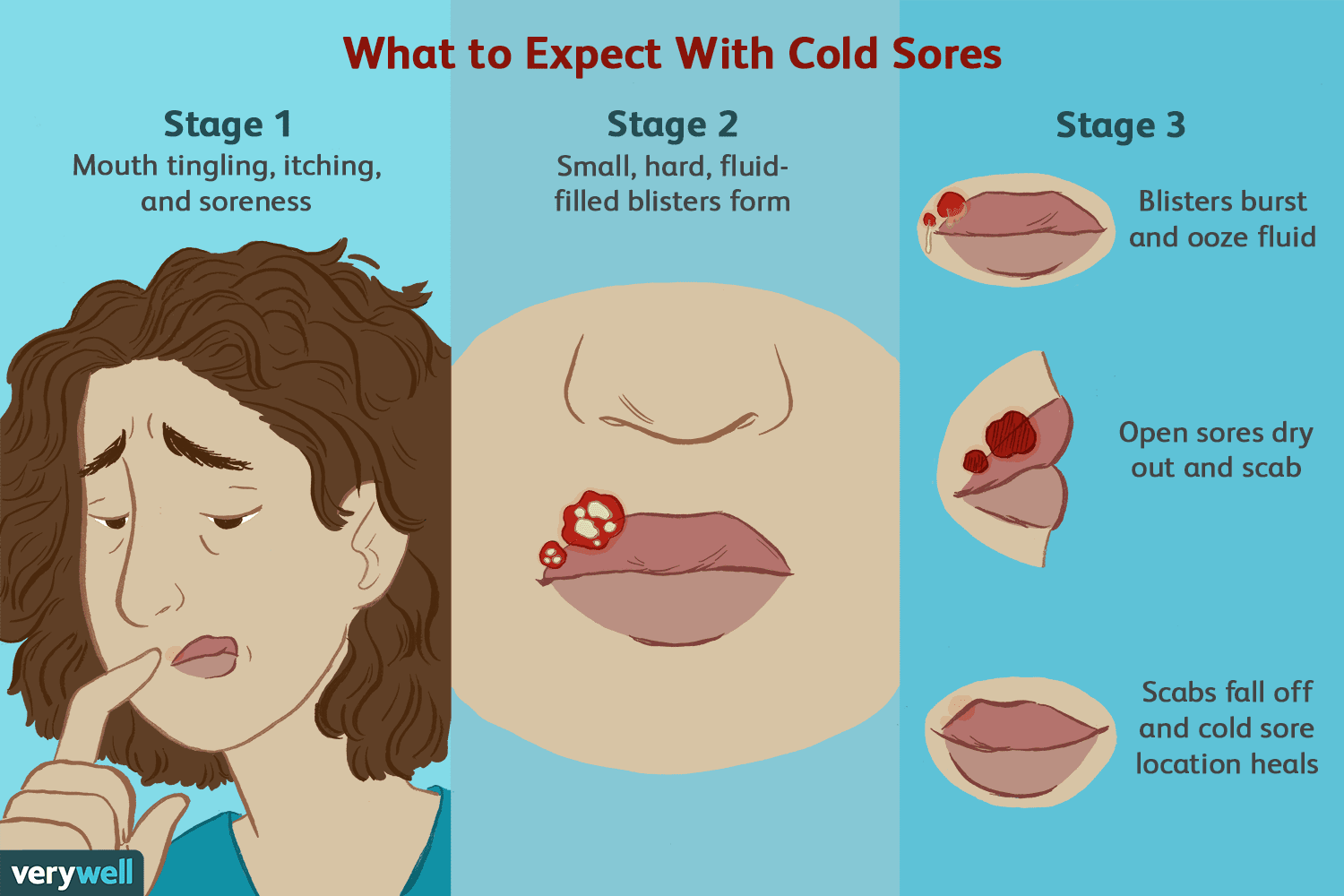 Understanding The Stages Of A Cold Sore Outbreak
