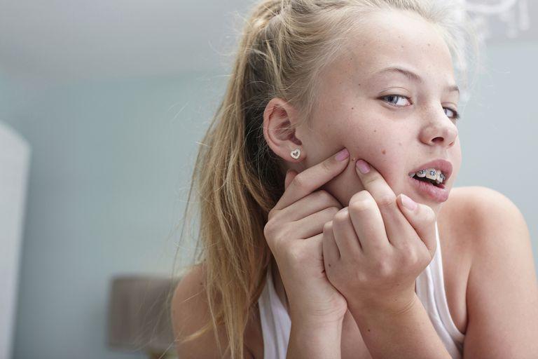 10 tips for treating teen acne for girls