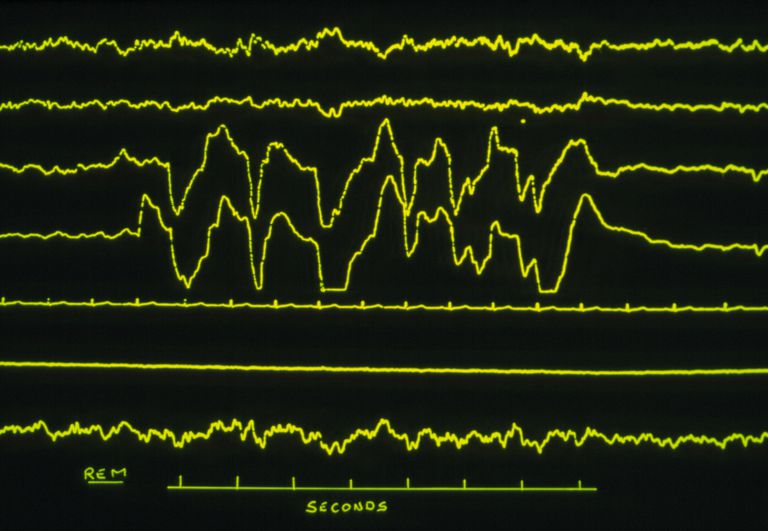 Sleep research: various traces of REM sleep
