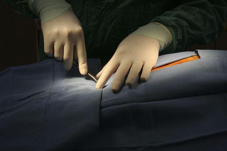 surgeon beginning surgery