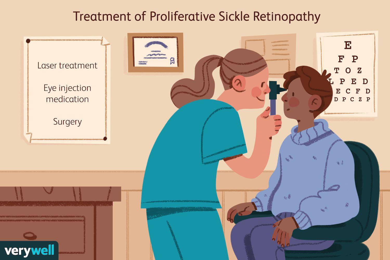 Treatment of Proliferative Sickle Retinopathy