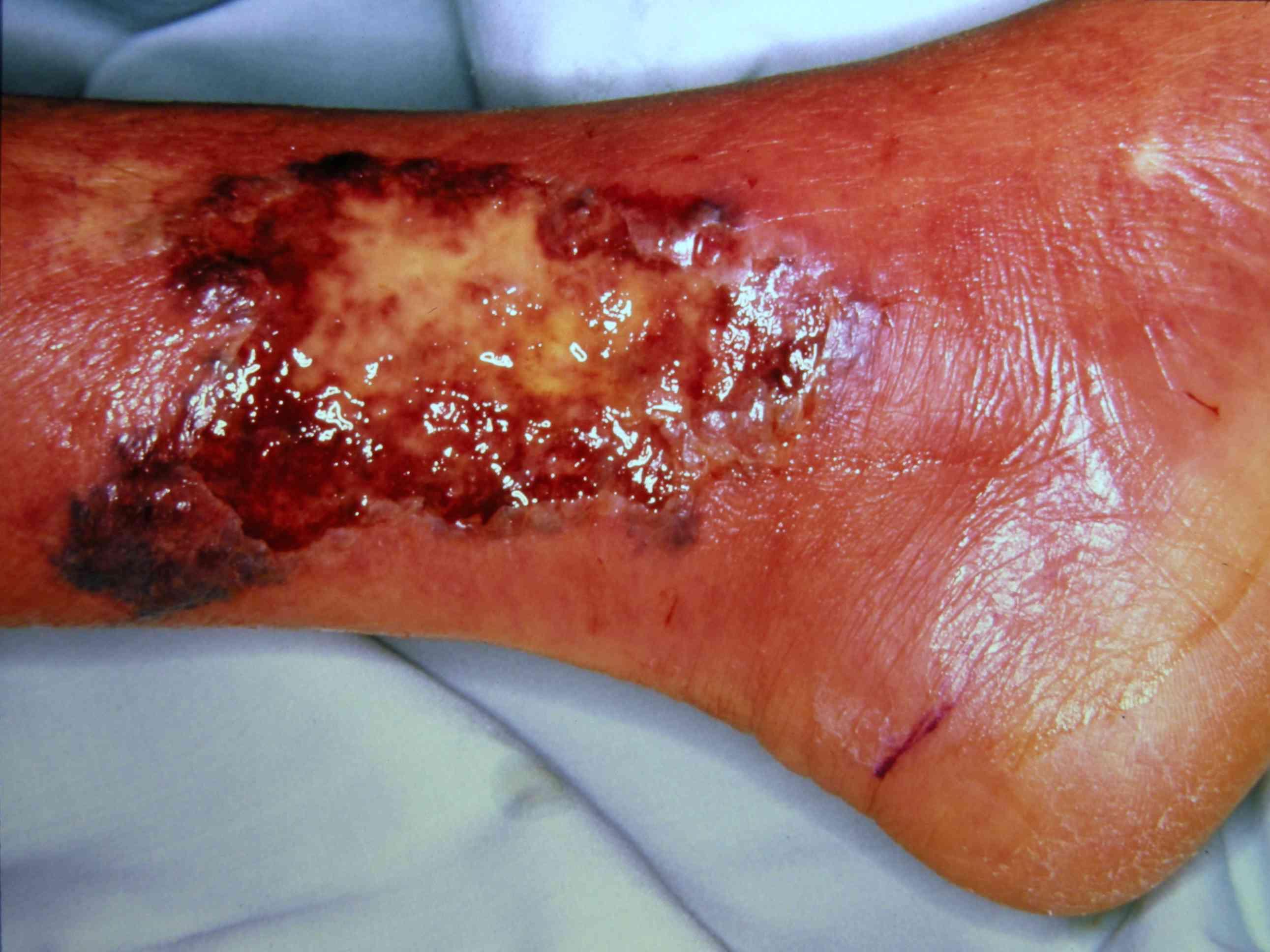 Pyoderma gangrenosum on ankle