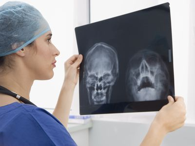 Surgeon looking a X-rays of a skull