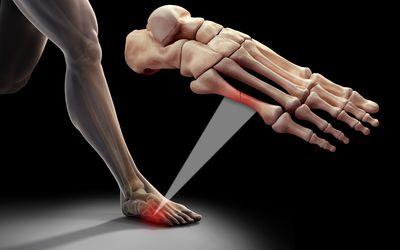 foot metatarsal fracture