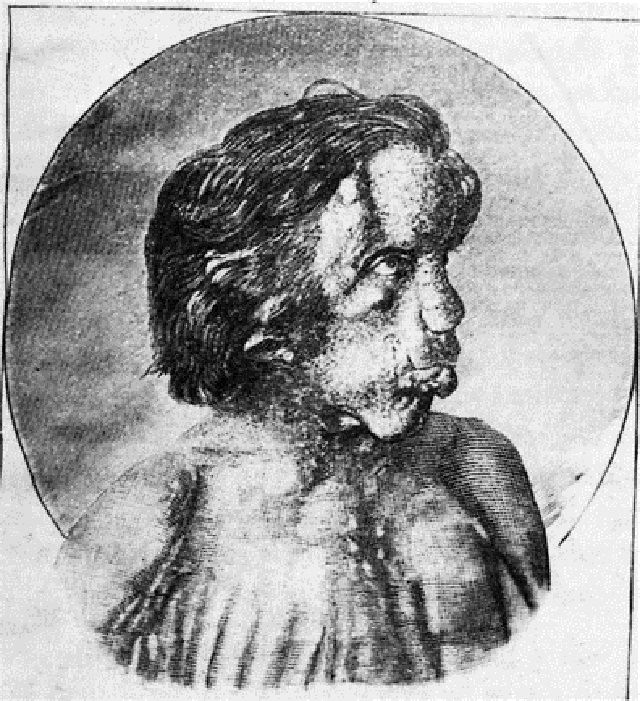 Illustrated portraite of Joseph Merrick