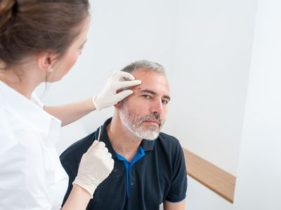 Cryotherapy used to Removed an Age Spot on a white male