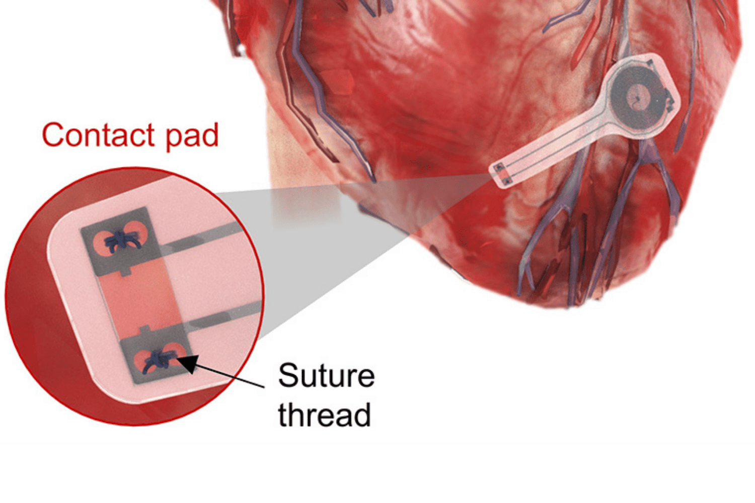 illustration of pacemaker