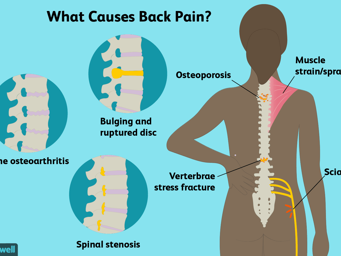 Back Pain Causes Treatment And When To See A Doctor