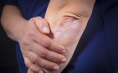How Age Affects the Location of Eczema Rashes