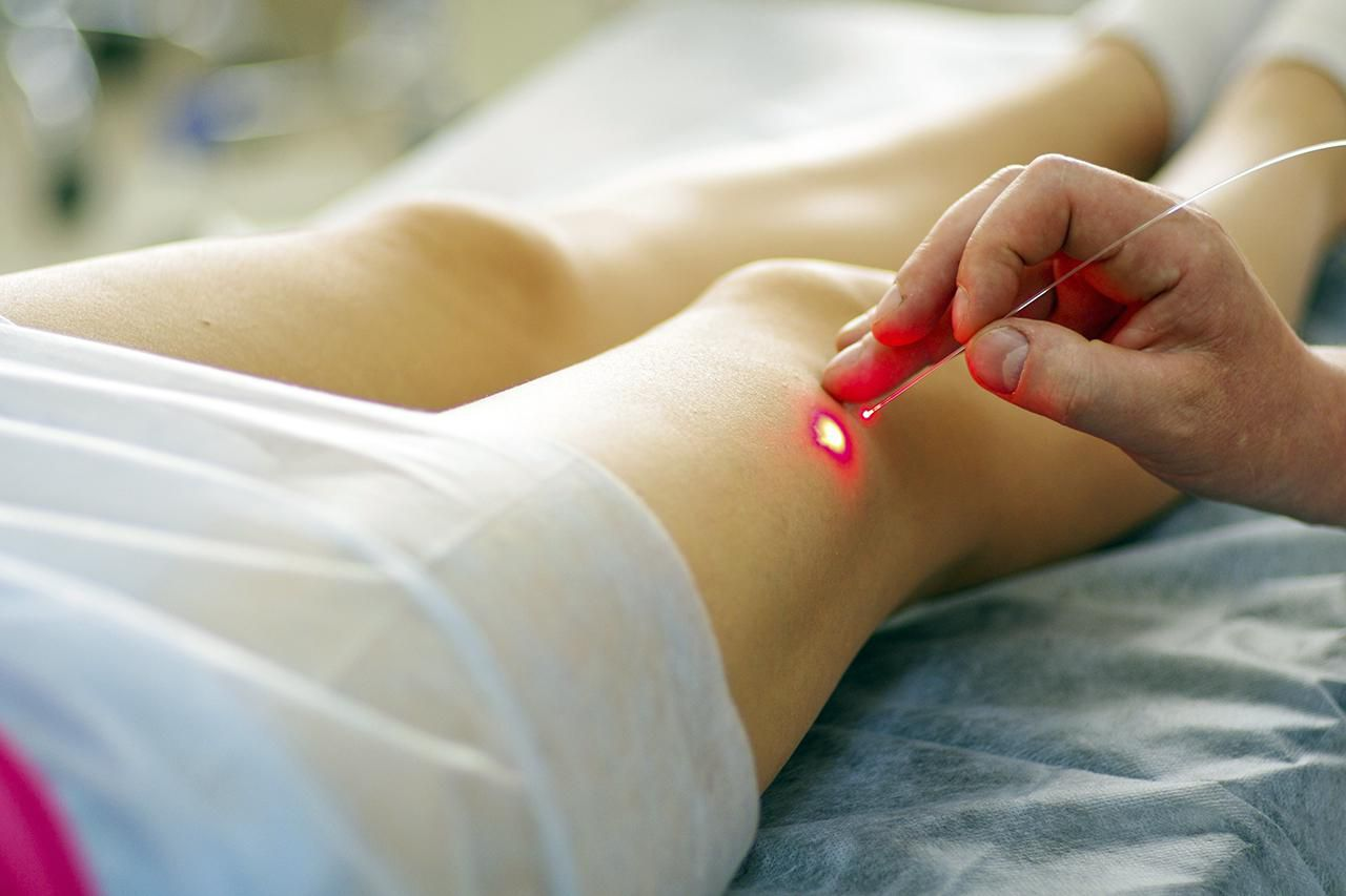 Varicose laser treatment on female legs in clinic