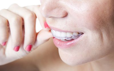 Self help tips for loose orthodontic bands clear braces invisalign solutioingenieria Images