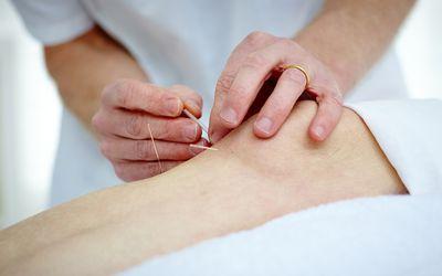 knee acupuncture