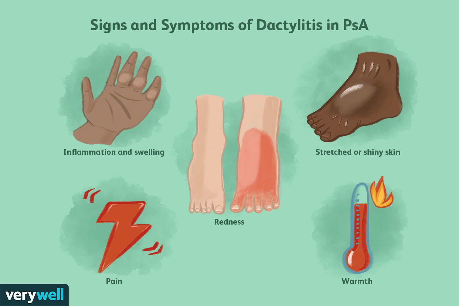 Signs and Symptoms of Dactylitis in PsA
