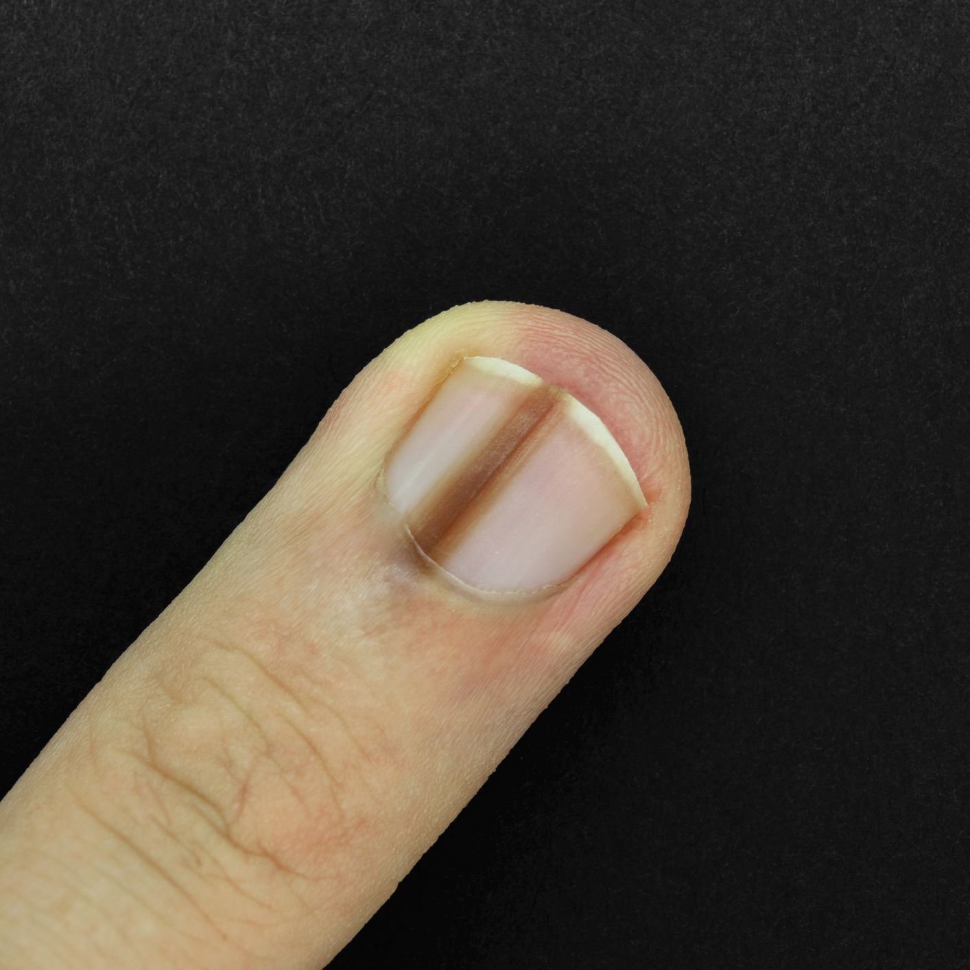 Longitudinal Melanonychia Causes and Risk Factors