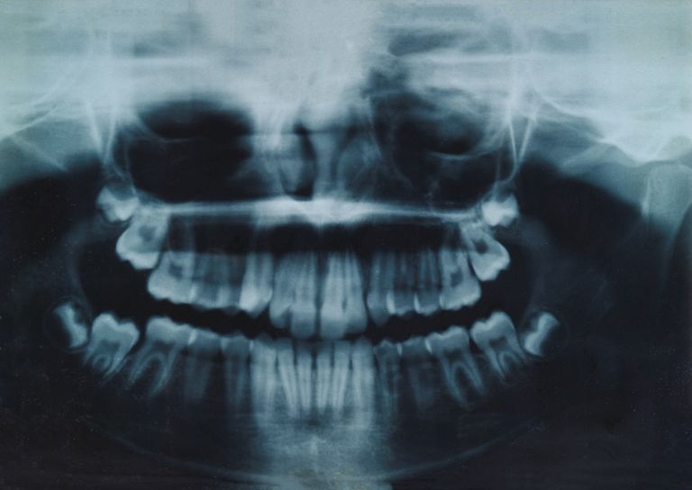 X ray of teeth