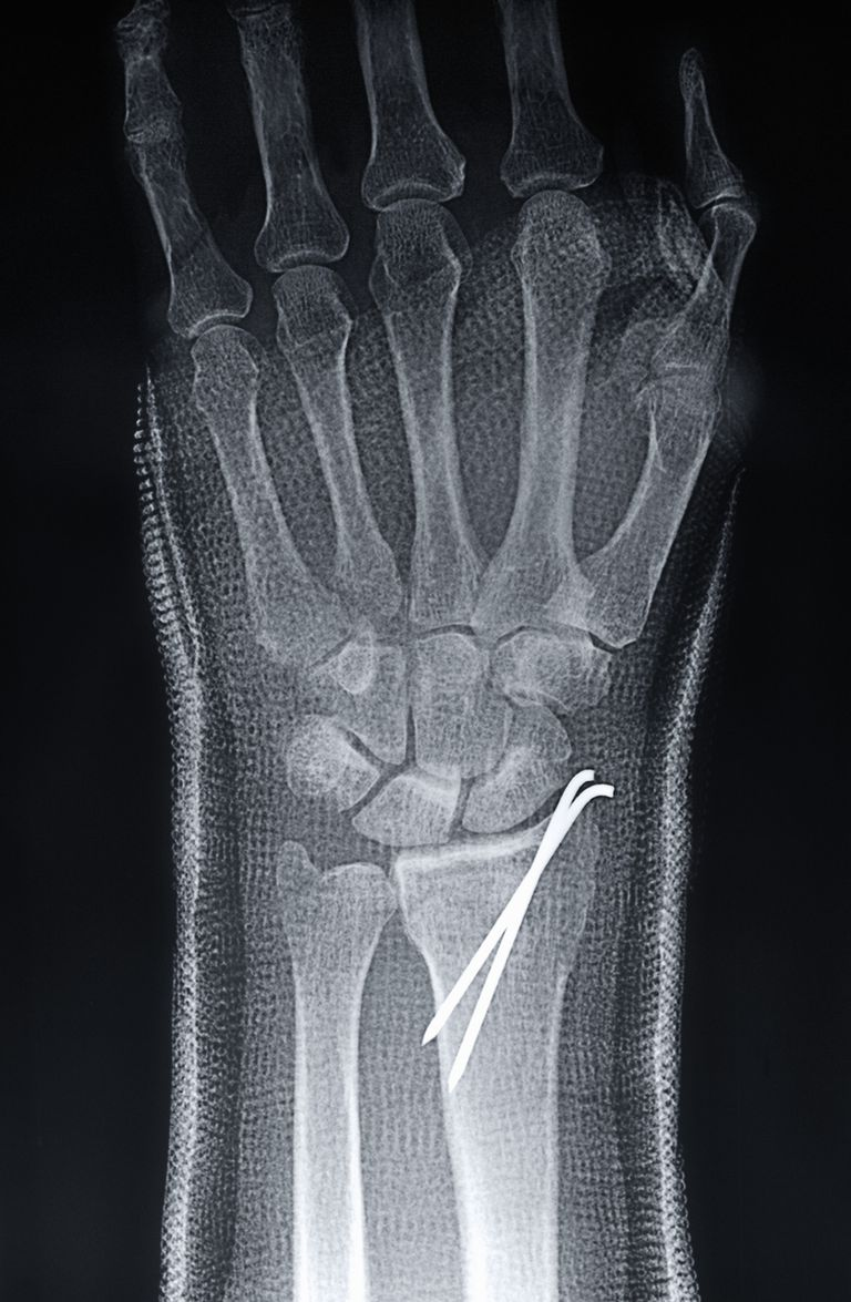 Kirschner or K Wires Are Surgical Bone Pins