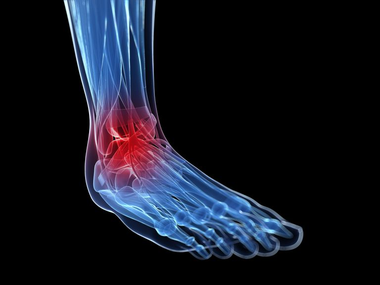 Ankle inflammation and pain