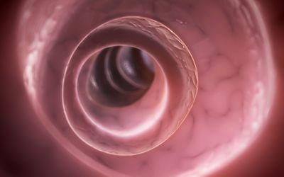 Potential Risks of a Colonoscopy