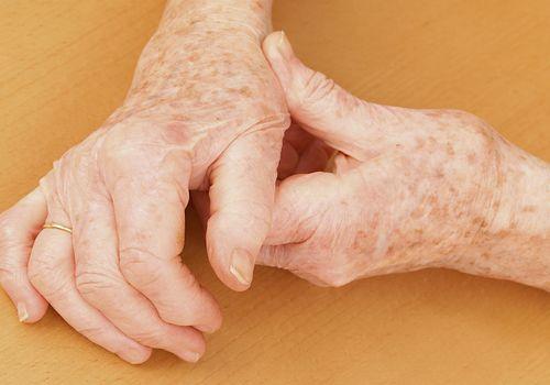 An elderly person suffering from osteoarthritis