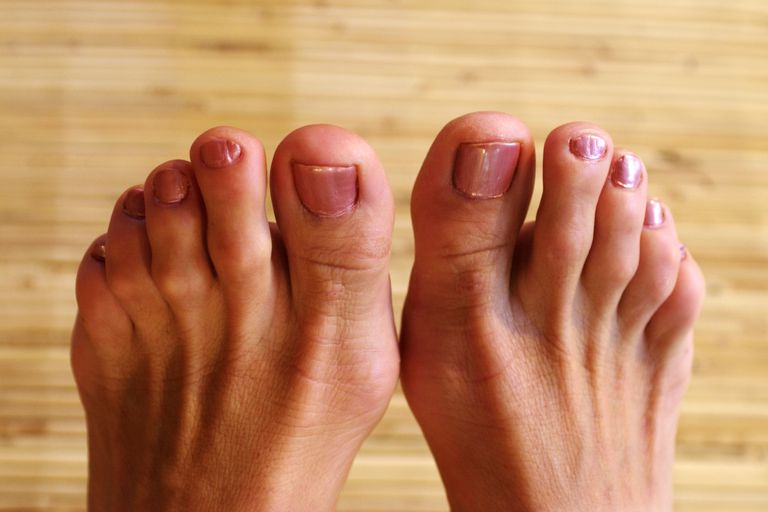 What To Do About That Hammer Toe