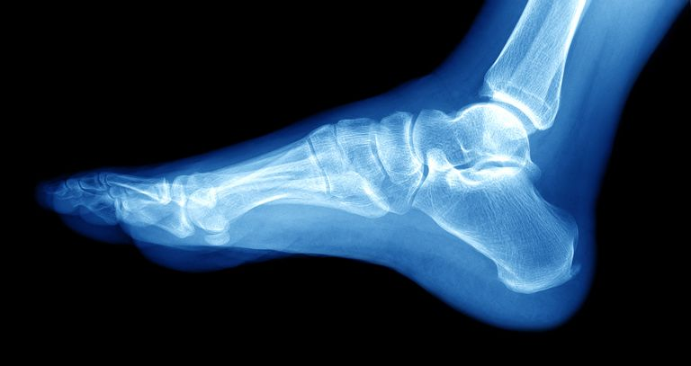 fibula ankle bone